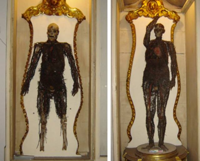 Museo Anatomico a Napoli