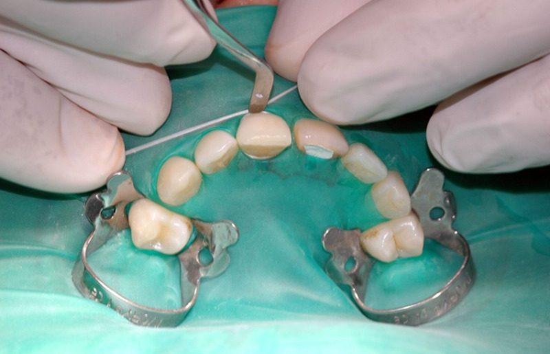 protesi-dentale_