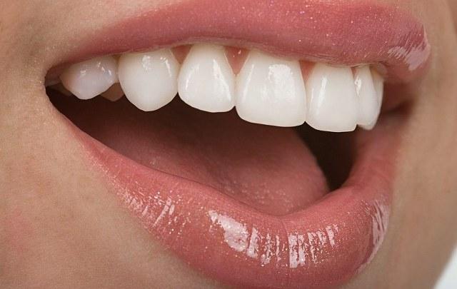 moderne protesi mobili per i denti